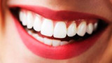 How Teeth Whitening Works - Howdini
